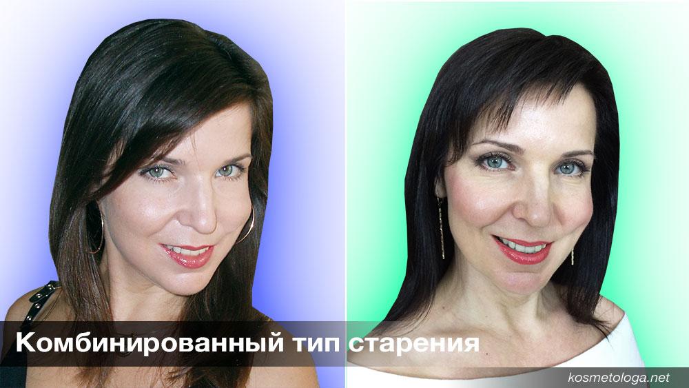 У комбинированного типа старение нередко начинается по типу Усталое лицо, а с возрастом в той или иной степени присоединяются признаки других типов