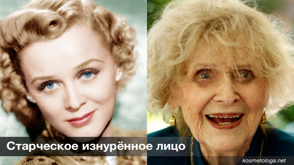 Старческое изнурённое лицо – это последняя стадия всех перечисленных типов, и в этом случае появляются практически все признаки старения.