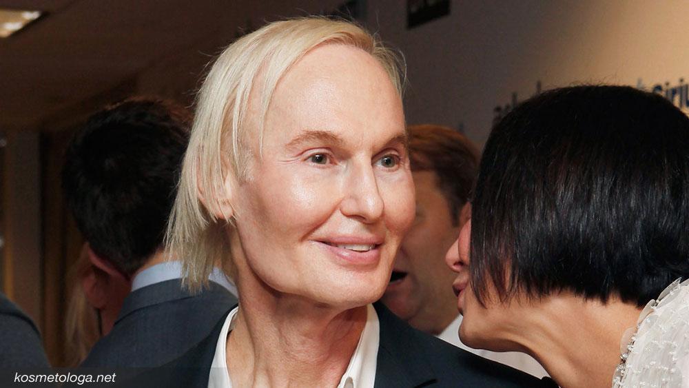 Уколы красоты не сделали Фредерика Брандта моложе, хотя на его лице и нет морщин